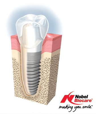 dental_implants2